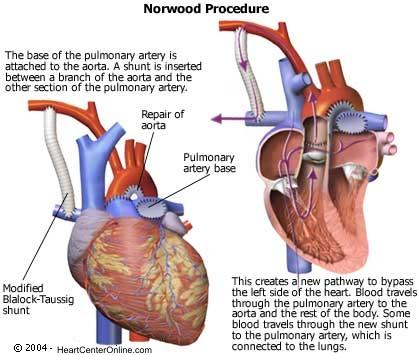 Norwood Operation